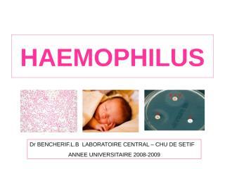bacterio HAEMOPHILUS.ppt